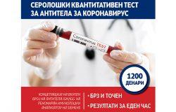 seroloski test Acibademsistina